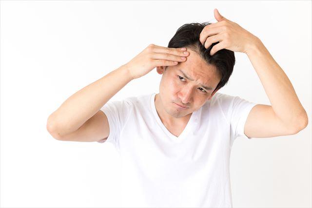 agaかもしれない?薄毛の原因と対策方法を紹介!