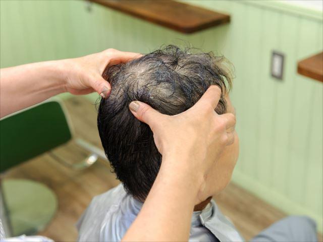 男性型脱毛症は防げる?効果的な対策方法を知る!