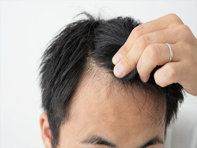 長く通える育毛サロンを選ぶにはどうすればいい?